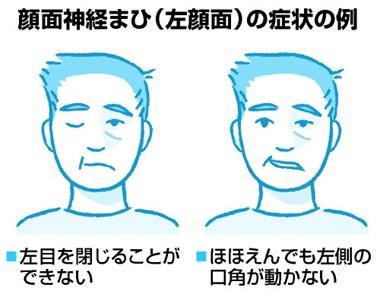 顔面神経まひを、どこの科が治療するかご存じですか。それも、われわれ耳鼻咽喉科です。