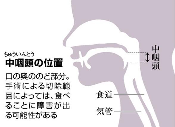 が 中 ん 咽頭