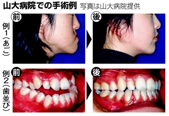手術 症 顎 変形
